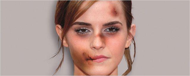 Emma Watson, Kristen Stewart, Angelina Jolie défigurées pour dénoncer les violences faites aux femmes